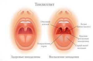 Причиной развития рефлекторного кашля является тонзиллит