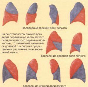 Долевая пневмония
