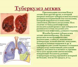 При туберкулезе легких массаж запрещен