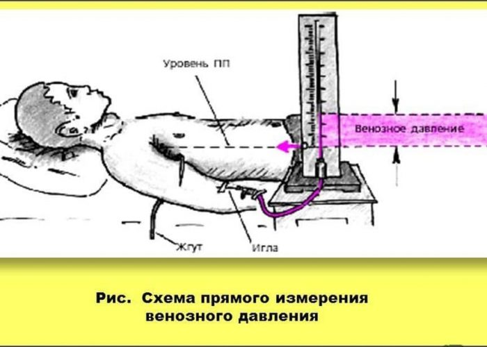 Флеботонометр