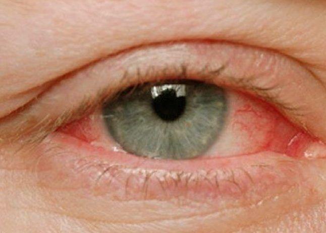 Покраснение глазных склер