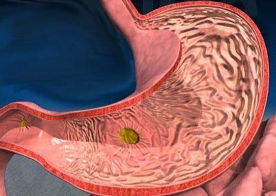 Сбой функционирования желудочно-кишечного тракта