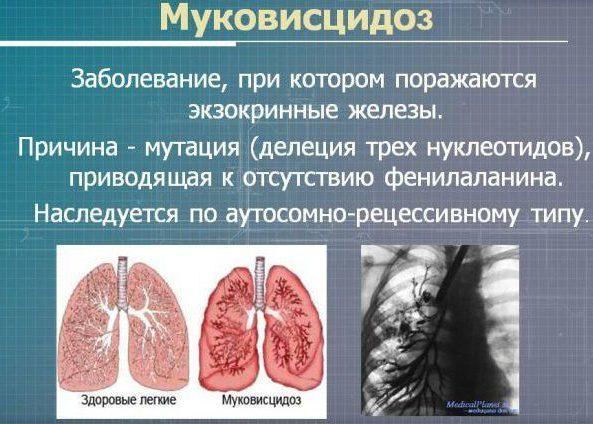 Кистозный фиброз (муковисцидоз)