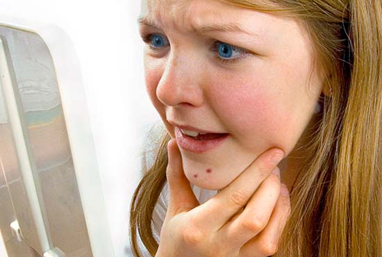Проверенные способы лечения прыщиков у 13-летних девочек