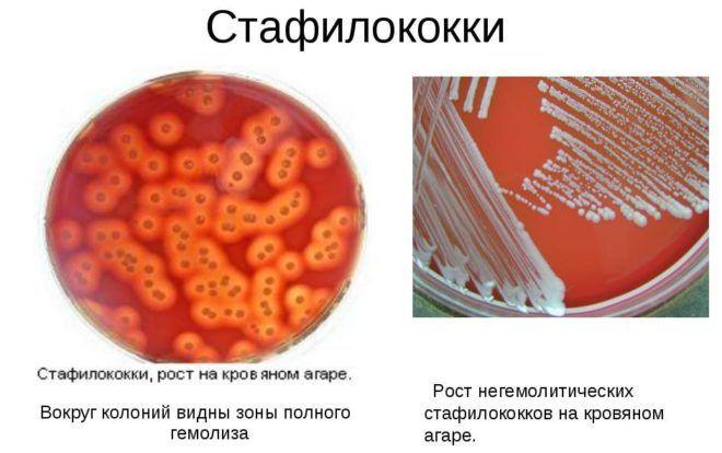 Сумамед эффективен при заболеваниях вызванных стафилококками
