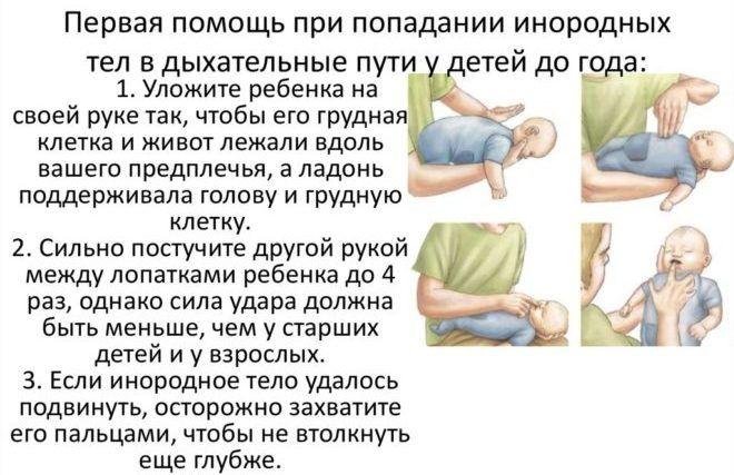 Присутствия инородного тела в дыхательных путях грудничка