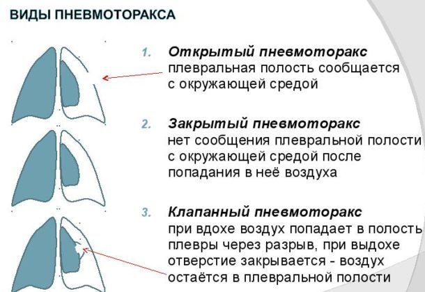 Пневмоторакс спонтанного типа