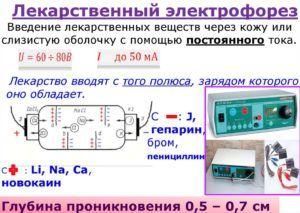 Медикаментозный электрофорез при пневмонии