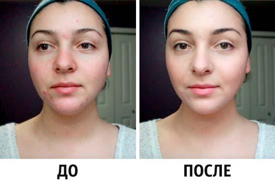 Идеальная кожа на лице – это реально