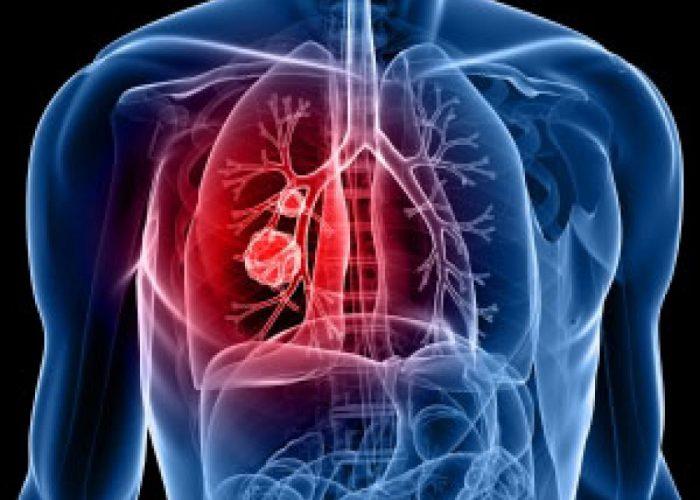 Обструктивные патологии легких