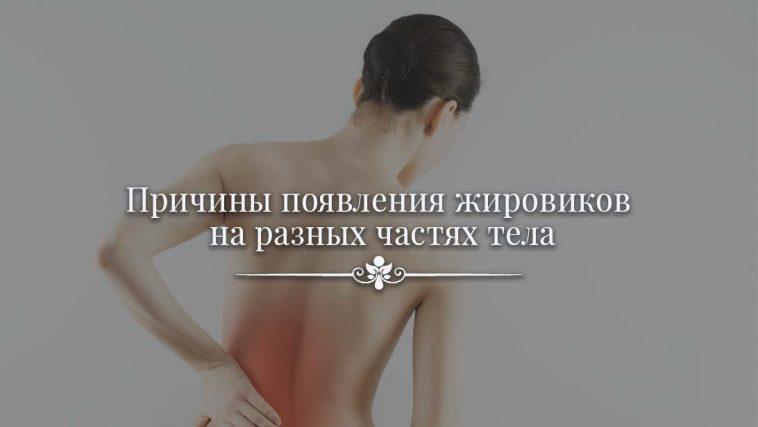 Причины появления жировиков на разных частях тела