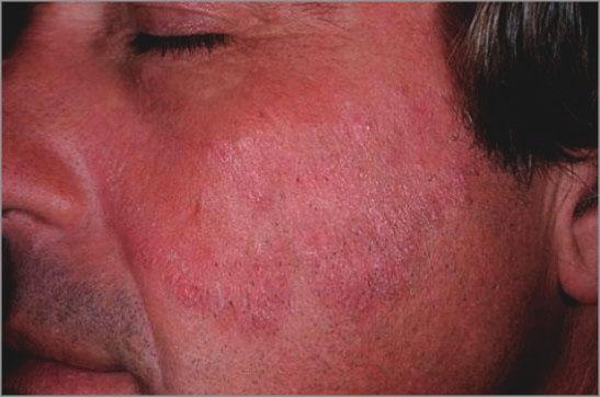 Бляшки на лице