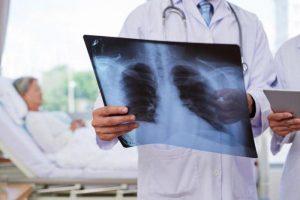 Бронхопневмония - группы риска