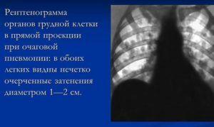 Пневмония на снимке