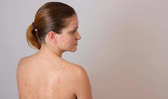 Все то, что нужно знать для чистоты спины и плеч