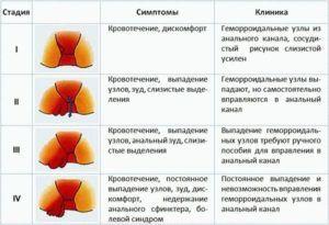 При геморрое лечение кашля чесноком запрещено