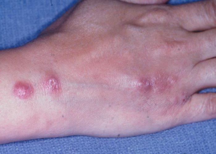 Инфекционное поражение эпидермиса