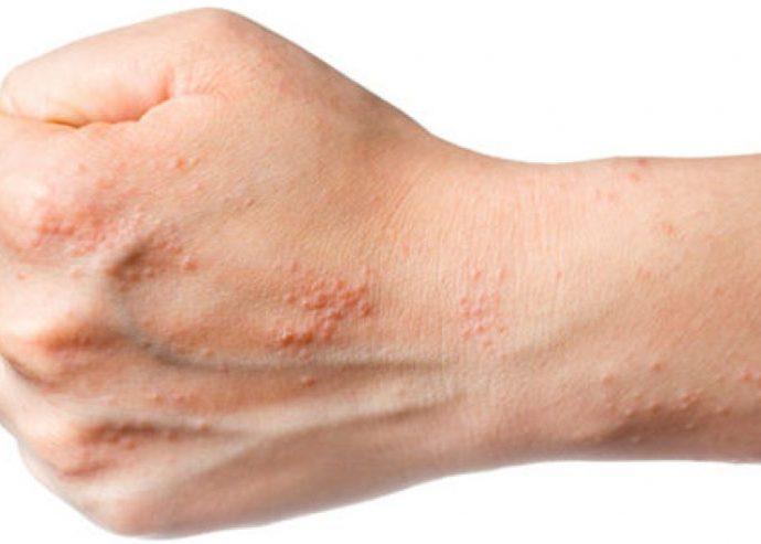 Вторичные дерматозы