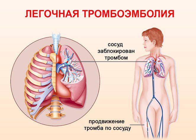Инфаркт и тромбоэмболия легкого