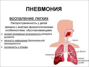 Появление боли в легких после пневмонии