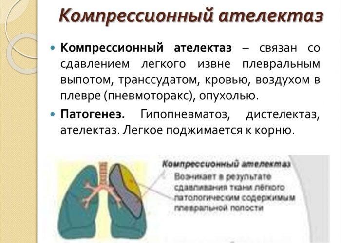 Ателектаз лёгких