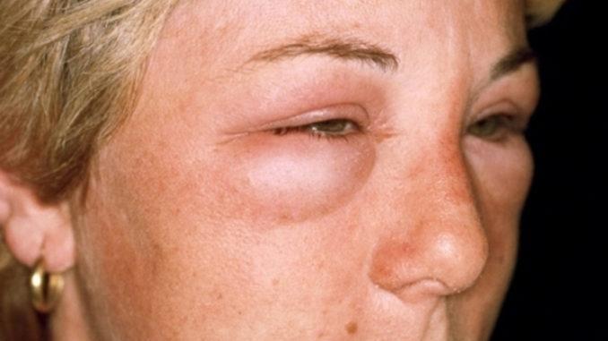 отек квинке симптомы у женщины