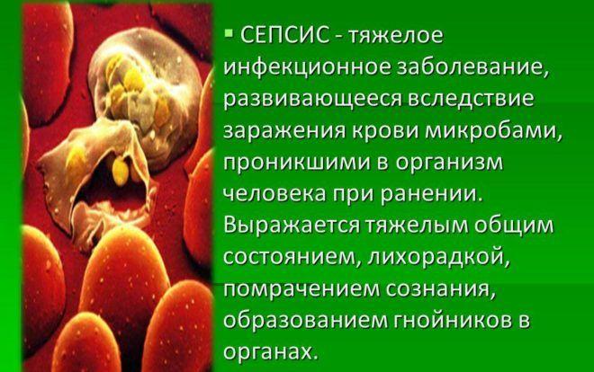 Сепсис является осложнением пневмонии