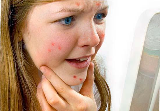 Комплексное лечение прыщей у подростков