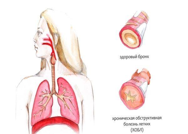 Хроническая обструктивная болезнь лёгких