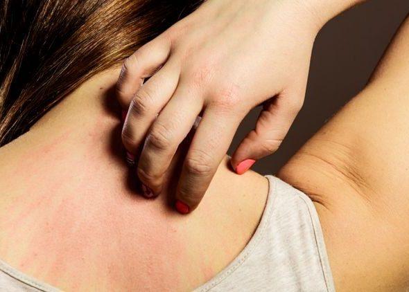 Аллергическая реакция на конкретные препараты