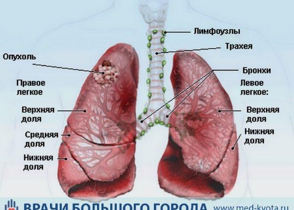 Локализация опухоли