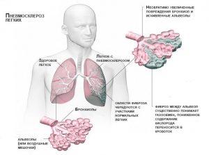 Симптомы пневмосклероза легких
