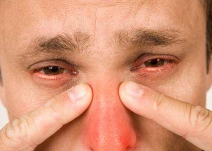 Гнойные воспалительные процессы дыхательных путей или носа