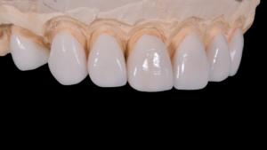 Накладки на зубы: виниры, цены