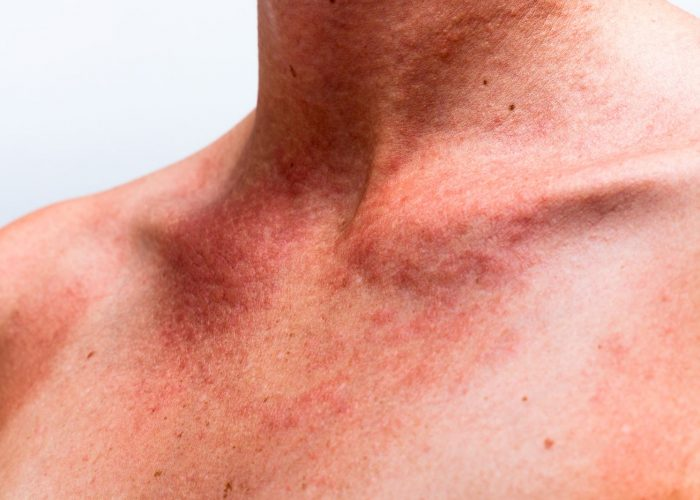 При аллергических реакциях