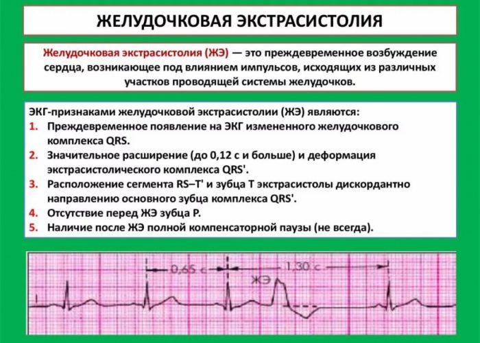 Частой желудочковой экстрасистолией