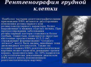 Рентгенография грудины для диагностики пневмонии