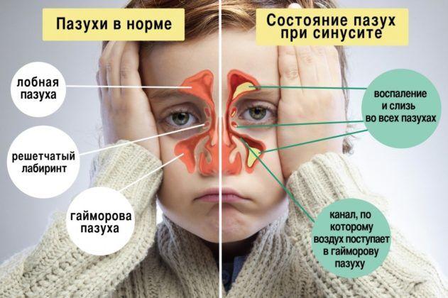 Синусит влечёт за собой кашель