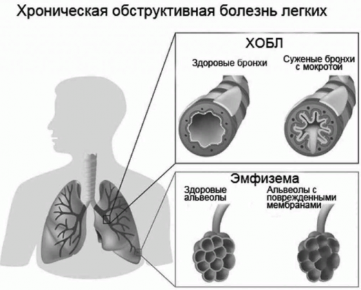 Хроническое заболевание ХОБЛ