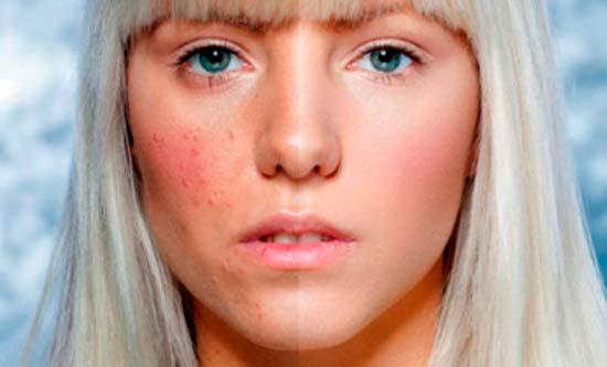 Чистим лицо от шрамов после прыщей