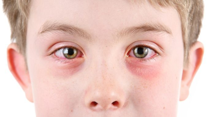 аллергия вокруг глаз у ребенка