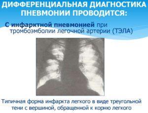 Инфарктную пневмонию