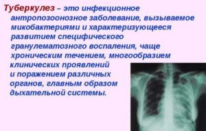 Туберкулез является одной из заболеваний которые лечит фтизиатр
