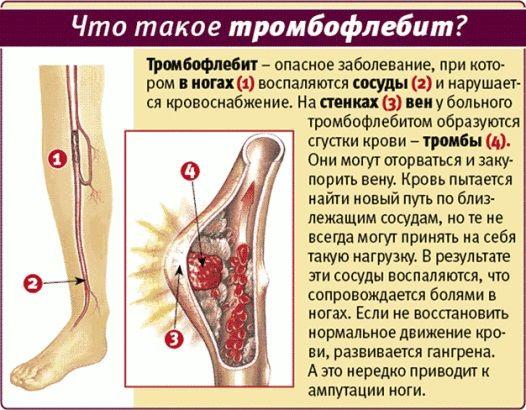Дыхательную гимнастику по Стрельниковой запрещено выполнять при тромбофлебите