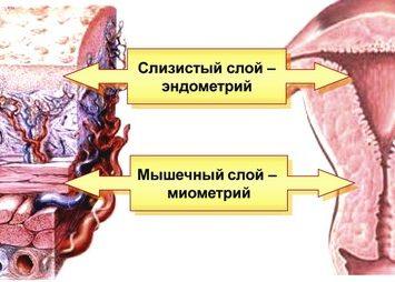 Снижение сократительной активности миометрий
