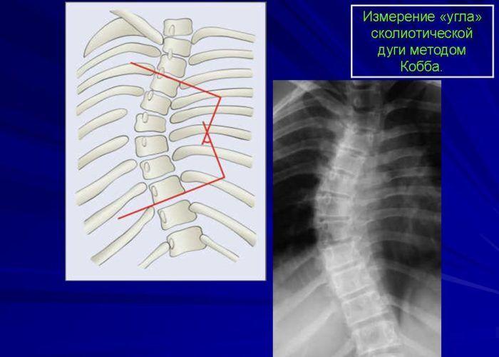 Рентген позвоночного столба