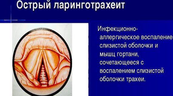 Ларинготрахеит