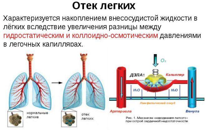 Пневмония может привести к отеку легких