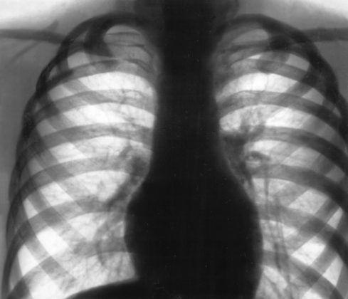 Рентген диффузного пневмофиброза