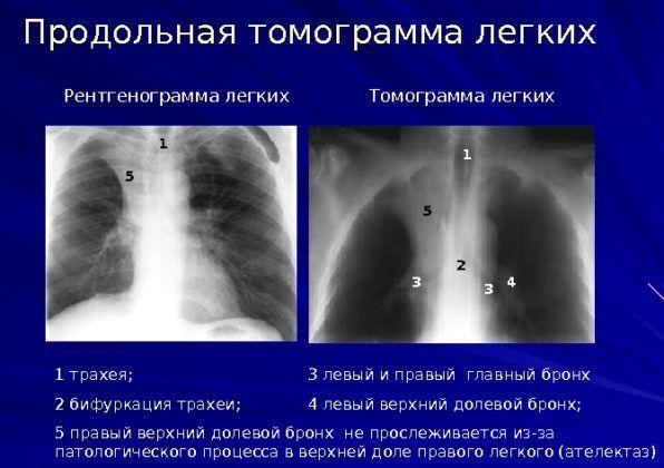 Томограмма легких